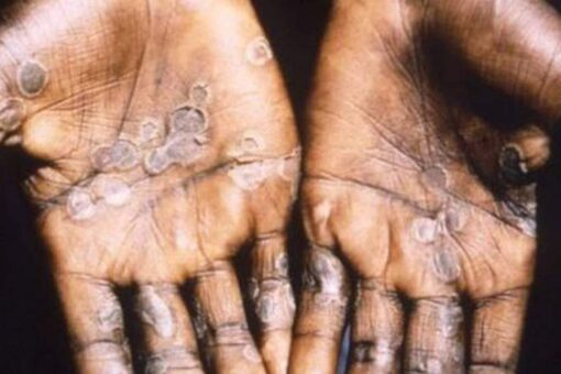 Monkeypox in US: CDC monitoring 200 people in 27 states, other countries